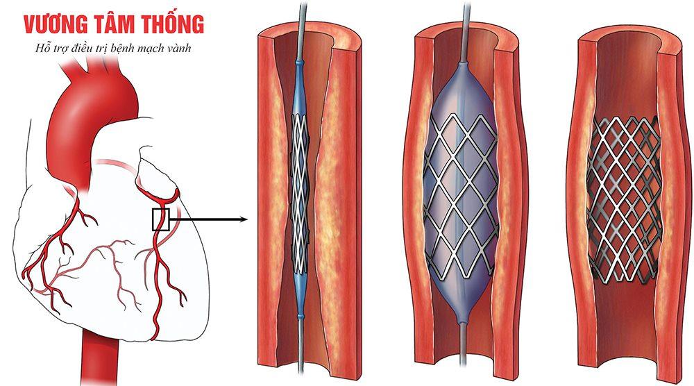Phương pháp nong mạch đặt stent điều trị tắc hẹp mạch vành
